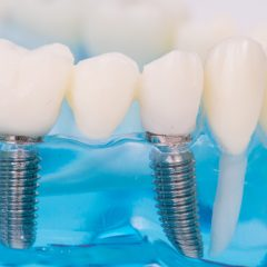 How to Avail for Free Dental Implants