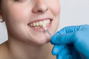 cheap dental veneers