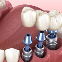Does tooth implant hurt? What to expect when getting dental implants