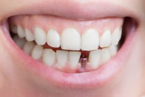 does tooth implant hurt