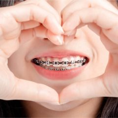 Dental Charity For Braces: Securing Free Or Discounted Braces